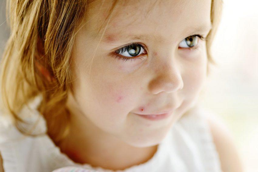 AOK!!! Eltern in Herne sollten angesichts zunehmender Windpockenerkrankungen unbedingt daran denken, ihre Kinder gegen Windpocken impfen zu lassen.