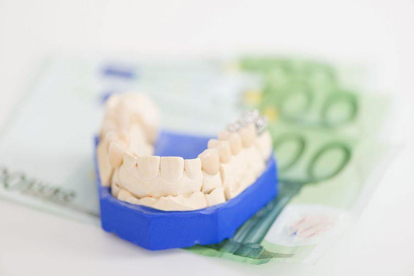 Gesetzlich Krankenversicherte bekommen ab 1. Oktober einen höheren Zuschuss für ihren Zahnersatz.